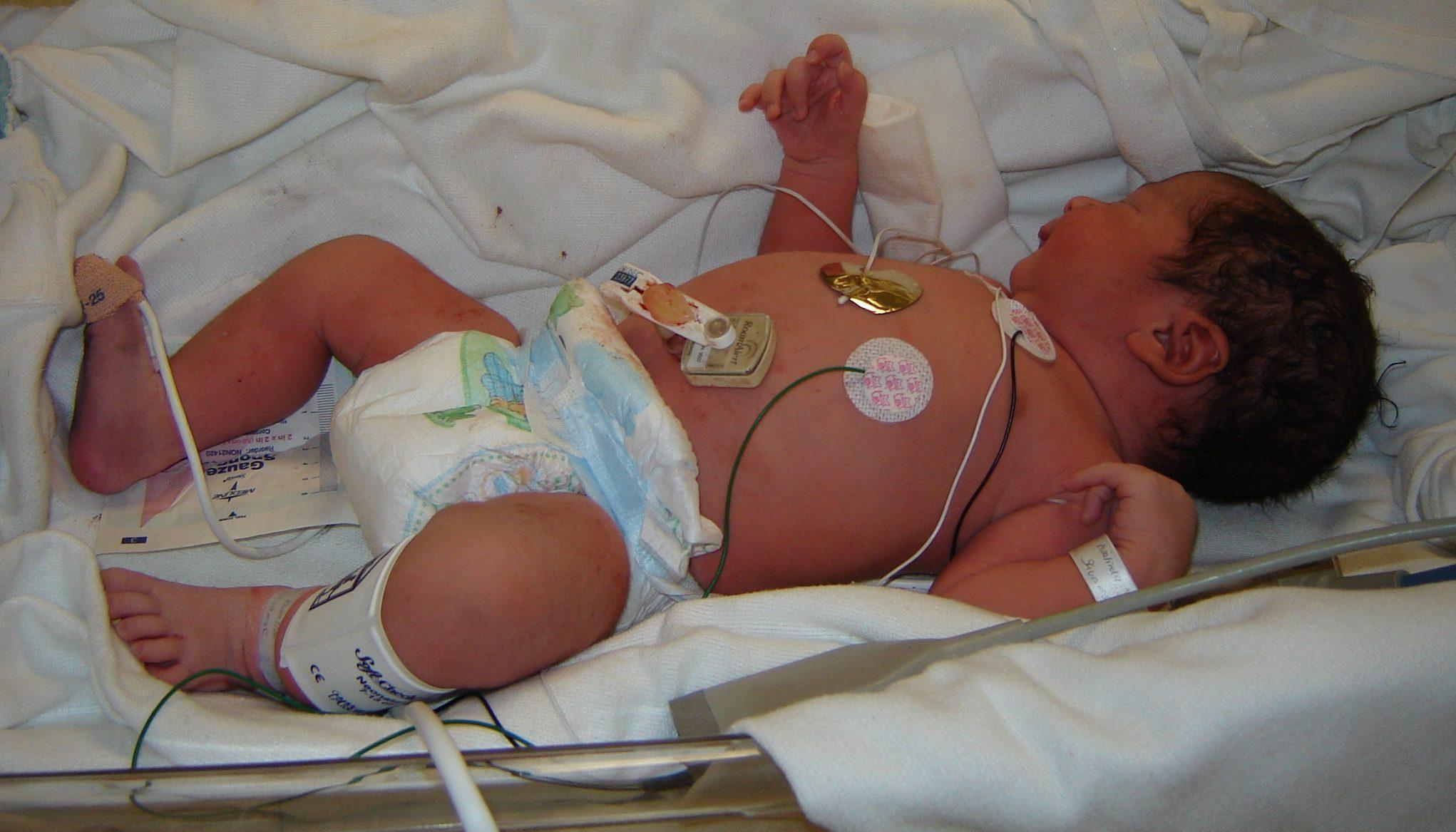 Formation en réanimation pédiatrique et en néonatalogie